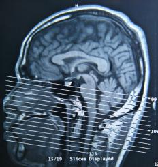 Trauma to the brain or nervous system can cause temporary paralysis.