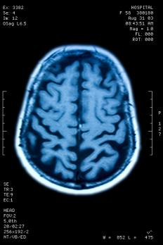 Brain images can provide primary data in many research studies.
