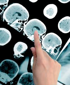 The brain is relatively unaffected by an MRI.