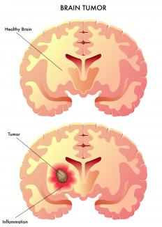 Meningiomas are relatively common brain tumors.