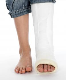 A displaced fracture may require surgery, after which the bone is set in a cast.
