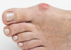 Severe bunions often require surgery.
