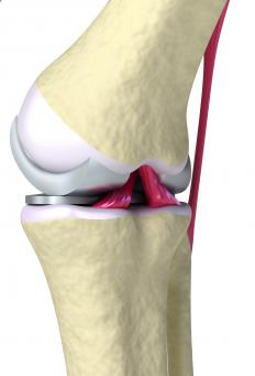 A physician can examine knee cartilage with a knee scope.