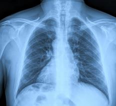 Chest X-rays can reveal the site of a blockage.