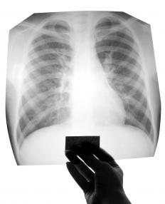 A chest x-ray may be required to further diagnose chest infections.