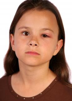 A pediatric ophthalmologist can treat cases of conjunctivitis, which is common in children.