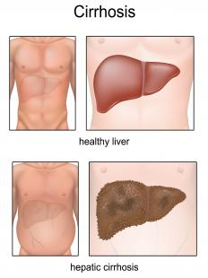 Hepatitis C and alcohol are often responsible for causing cirrhosis of the liver.