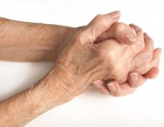 Ankylosis may be caused by arthritis.