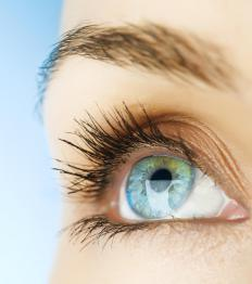 Crustiness and discharge are common symptoms of a chlamydia eye infection.
