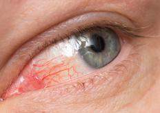 Conjunctivitis caused by a bacterial infection may be treated with a 0.3 percent solution of tobramycin.