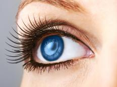 Eye whitening may be performed to reduce the appearance of veins on the white of the eye.