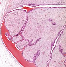 Common hypoechoic lesions may include a fibroadenoma, or breast cyst.