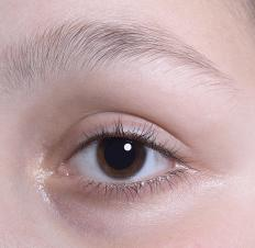 The palpebral fissure refers to the area where the lower and upper eyelids meet.