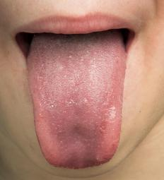 Warning signs of a seizure may include a strange taste in the mouth.