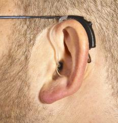 Some tinnitus hearing aids mask the ringing sounds caused by the condition.