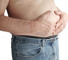 Side effects of corticosteroid therapy may include upset stomach.
