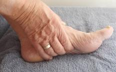 Arthritis may cause the development of a ganglion foot cyst.