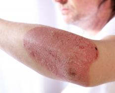 While some patients develop large patches of red, itchy and scaly skin, others develop very small patches affected areas.