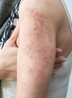 Skin redness, itching and burning are typical symptoms of poison sumac contact.