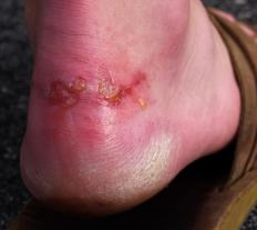 The color of pus depends greatly upon the location of an injury and the kind of infection involved.