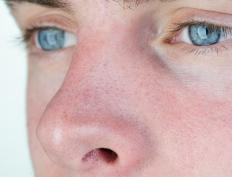 An example of a trait that is expressed through homologous recessive genes is blue eyes.