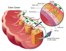 Stage 3 colorectal cancer means the cancerous cells have spread beyond the outer muscular layer of the colon.