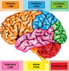 The foremost part of the brain is reduced in frontal lobe atrophy.