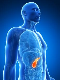 Sections of the pancreas are removed during a pancreatic biopsy when cancer is suspected.
