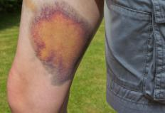 Taking blood thinners can increase susceptibility to bruising and discoloration.