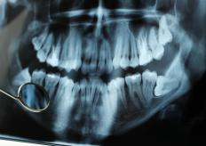 "Third mandibular molars are commonly known as ""wisdom teeth."""