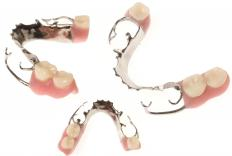 Metal partial dentures.