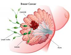 If a breast cancer is estrogen receptor positive, tamoxifen can be used to treat the cancer.