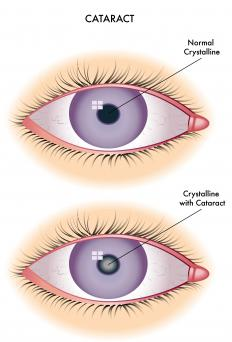 Cataracts occur when part of the eye is damaged -- usually because of a genetic condition or age -- and the eyes' lenses become cloudy.