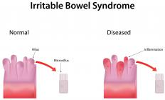 Irritable bowel syndrome can cause digestive system issues.