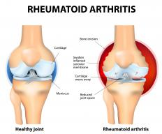 Rheumatoid arthritis an autoimmune disease that commonly causes joint inflammation in the hands and feet.