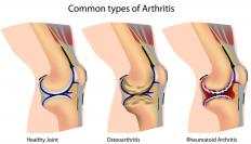 A diagram of arthritis' effect on the knee joint.