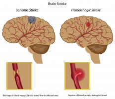 A diagram of an ischemic stroke and a hemorrhagic stroke.