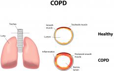 Elevated troponin levels may be caused by COPD.