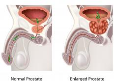 Doxazosin mesylate can be taken to relax the muscles around the prostate when it's enlarged.
