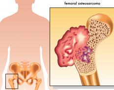 The most common type of bone cancer is osteosarcoma, which starts in cells that are growing new bone tissue.