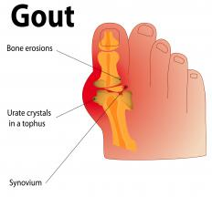 Fenofibrate may be used to treat gout.