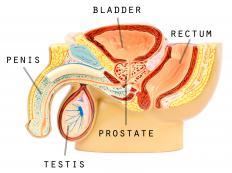 An enlarged prostate puts pressure on both sides of the urethra, making it difficult for one to urinate.