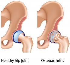 A healthy hip and one with osteoarthritis.