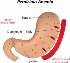 The B12 in chicken liver may be beneficial for anyone with pernicious anemia.