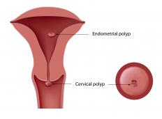 A cervical polyp might bleed because they are ruptured during intercourse.