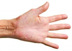 Wearing gloves while doing dishes can reduce dry skin on the hands.