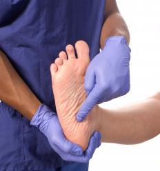 A podiatrist may recommend the best treatment for fallen arches.