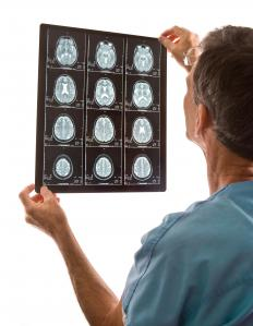 Doctors can find cerebral lesions on MRI or CT scans of the brain.