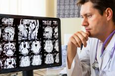 Interventional neurologists rely heavily on imaging to plan and perform procedures.