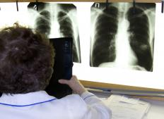 Doctor looking at chest radiographs on light box.